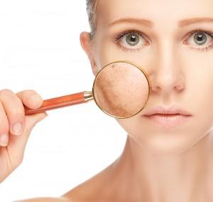 traitement-lesions-pigmentaire-au-laser